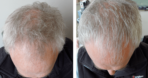 low level light therapy for hair loss